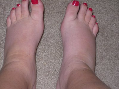 What causes severe edema in legs dangerous